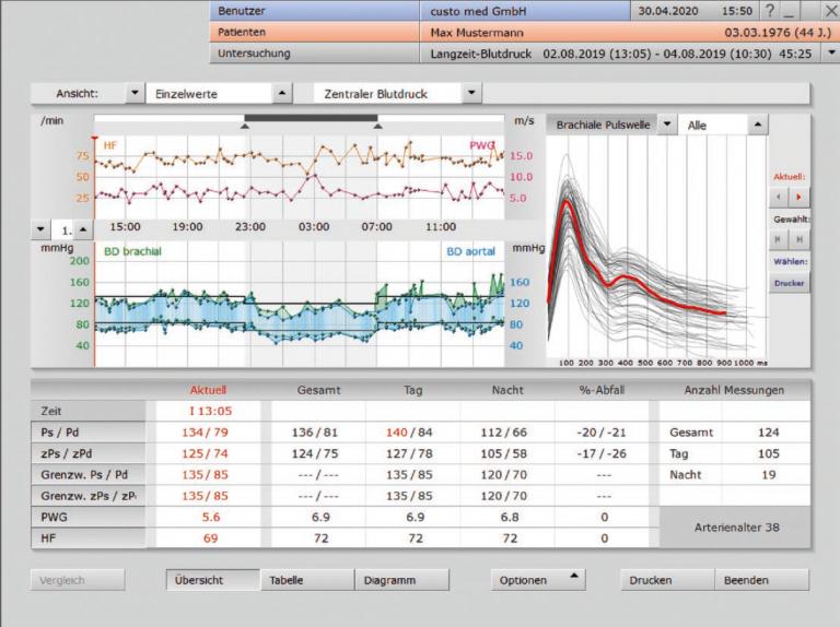 NEU: Zentraler Blutdruck in der custo diagnostic
